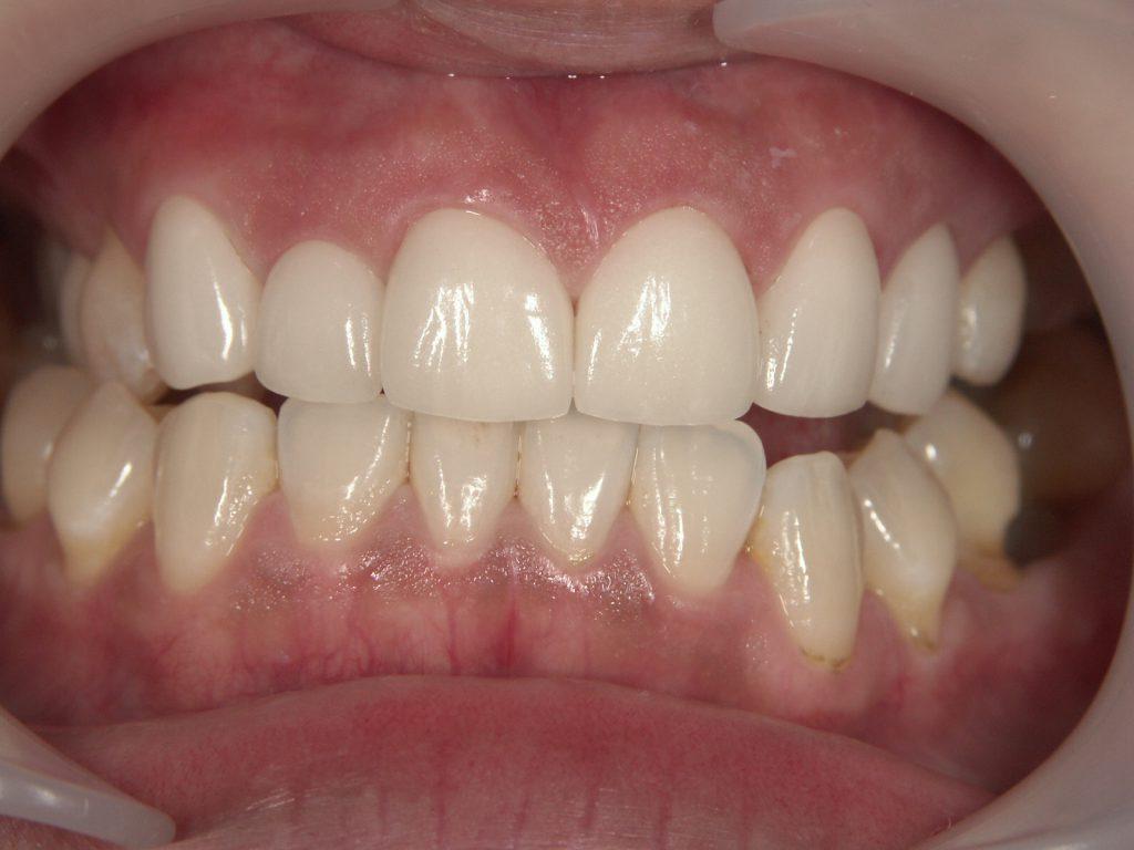 前歯にマウスピース矯正を行った後