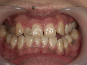 前歯にマウスピース矯正を行う前